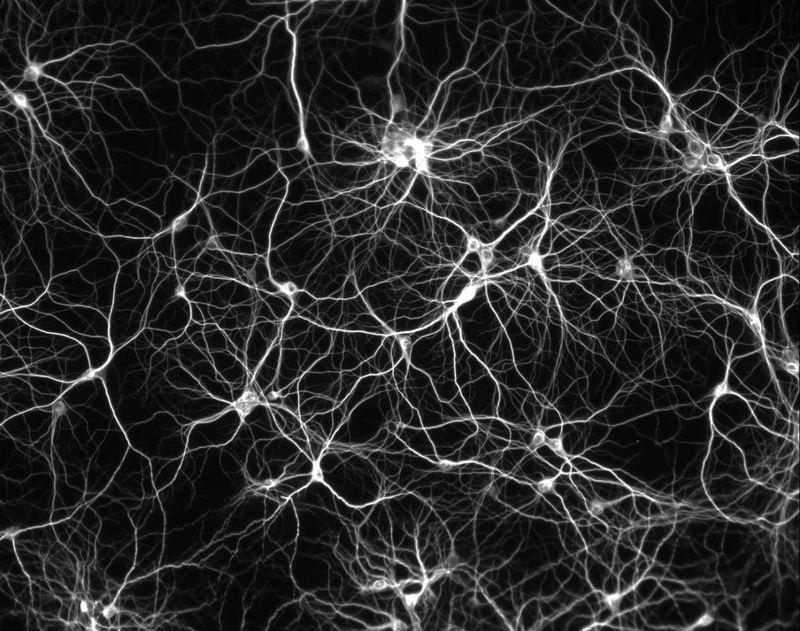 Projet en laboratoire de derni  232 re ann  233 e de licence - 2013    Neurons Wallpaper Black And White